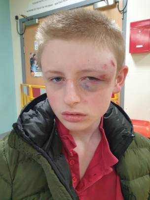 Main image for Teen is reeling from assault